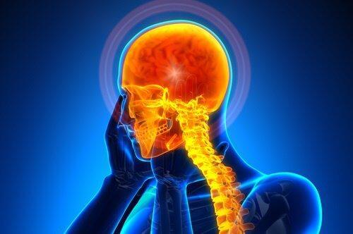 Aneurysms can cause headaches