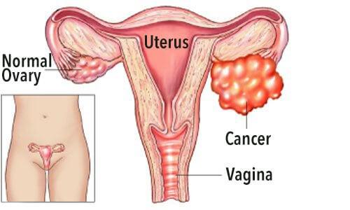 Ovarian health and ovarian cancer.