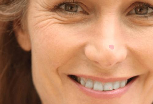 premature wrinkles