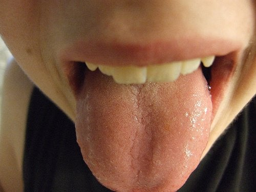 Health-Related Signals from Your Tongue