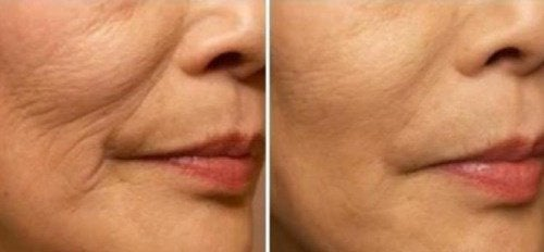 Prevent Fine Lines and Wrinkles