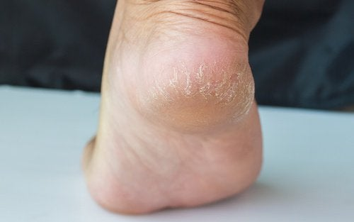 Treatments to Soothe Cracked Heels in a Few Days