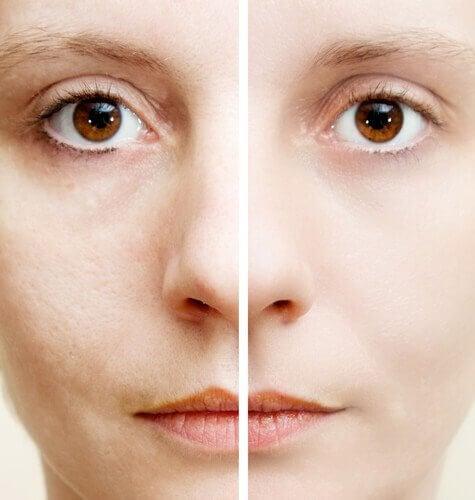 Five Natural Ingredients that Help Erase Dark Spots