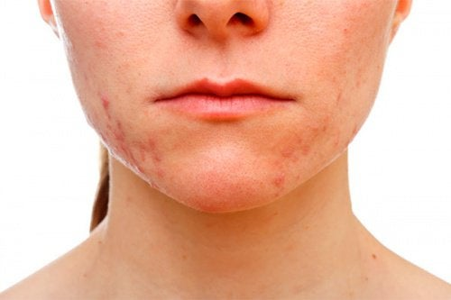 One of the effects of stress on your organs can be acne