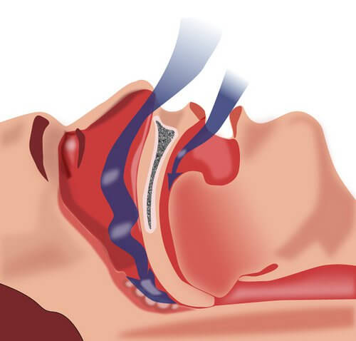 annoying snoring could be a sign of apnea.