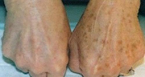 blemishes hands