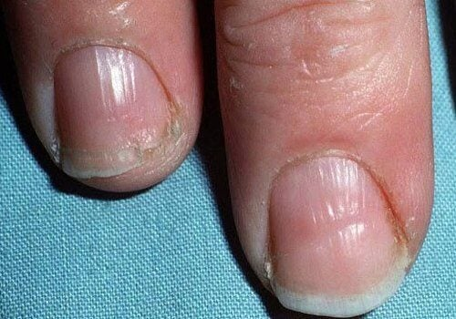 Dry Skin Hair Loss And Cracked Nails Are Common Signs Of Hypothyroidism These Symptoms Will Gradually Increase In Severity Require Treatment To