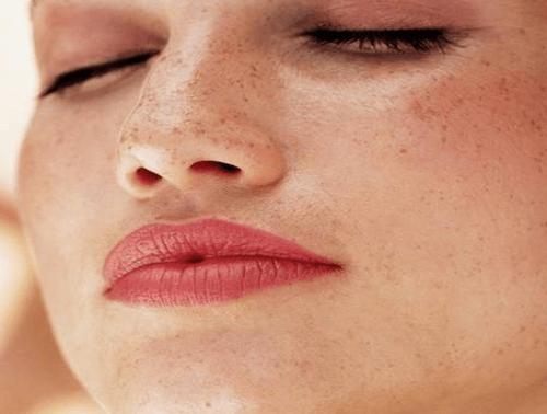 freckles face