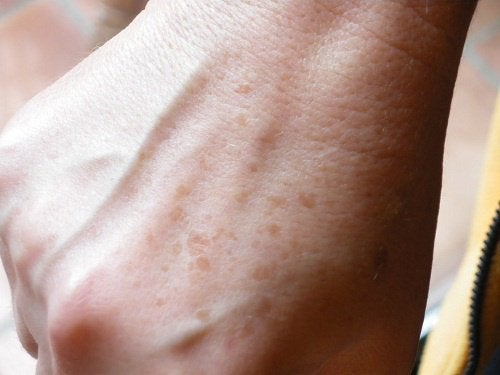 Eliminate Freckles with These Home Remedies