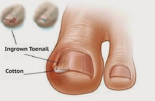 homemade treatment for ingrown toenails