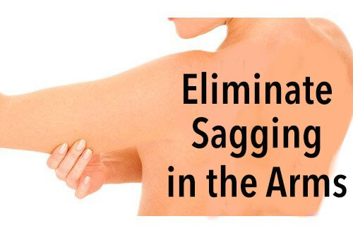 sagging arms