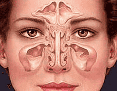 How to Treat Sinusitis in a Natural Way