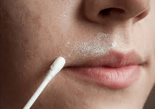 how to remove unwanted hair