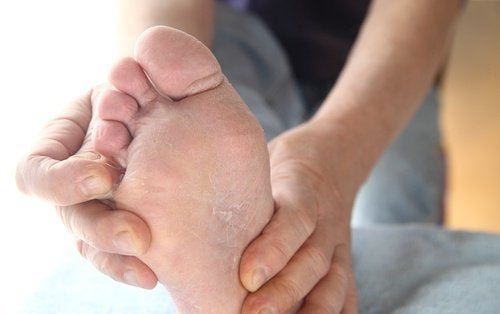 Athlete's Foot: Prevention and Treatment