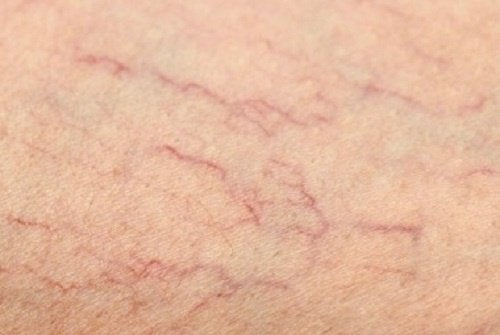 eliminate varicose and spider veins