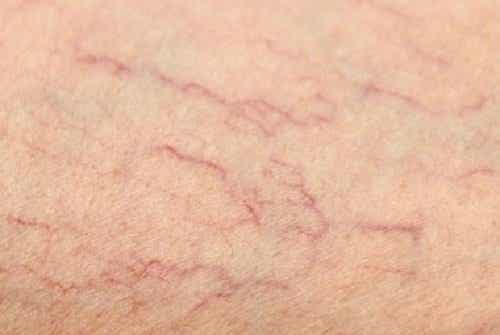 Can Varicose and Spider Veins Be Eliminated?