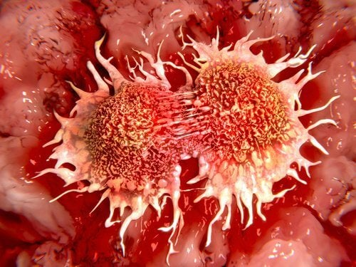 2 cancer cells