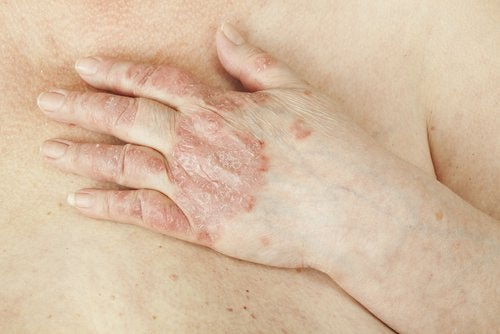 4 psoriosis