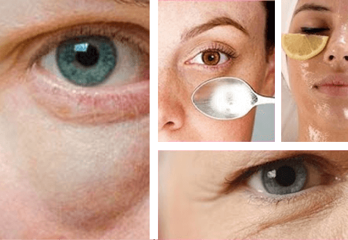 Simple Tips to Fight Bags Under the Eyes