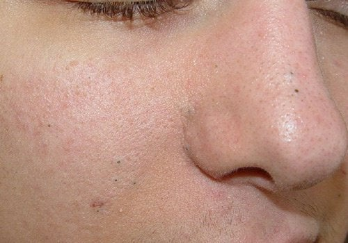 Natural Remedies for Blackheads, Warts and Blemishes