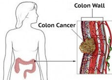 colon cancer symptoms in women
