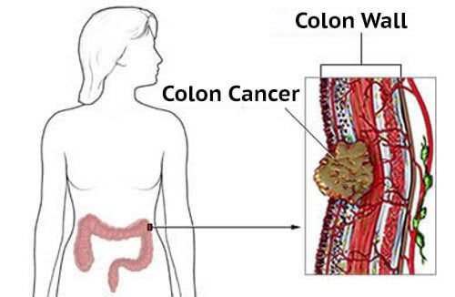 symptoms of colon cancer in women - step to health, Human Body