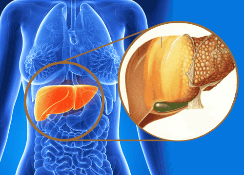 What Is Fatty Liver Disease? How Is It Treated?