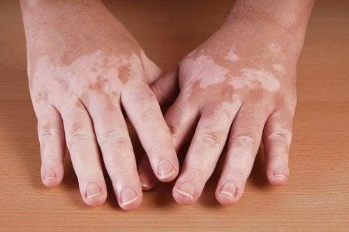 5 Home Remedies for Vitiligo