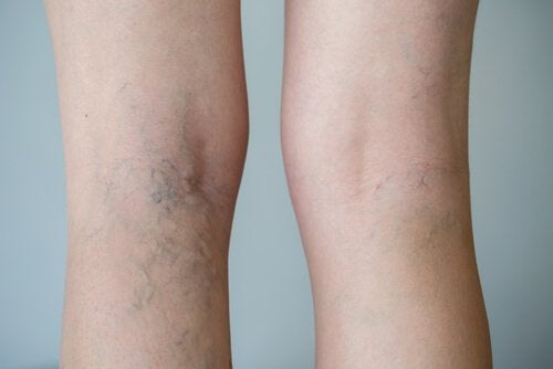 how to strengthen veins