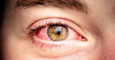 5 red eye