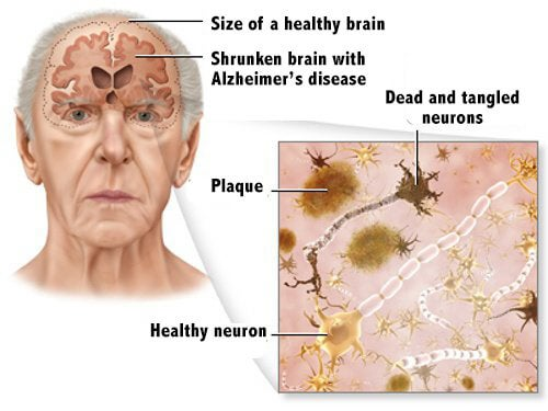 5 Tips For Alzheimer's Disease Prevention