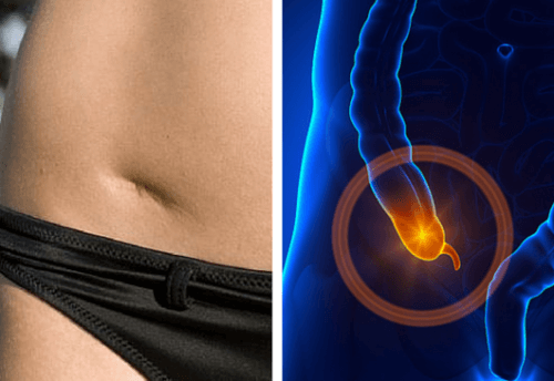 The Warning Signs of Appendicitis