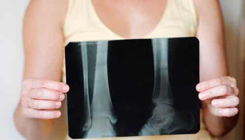 How to Maintain Bone Density after Menopause