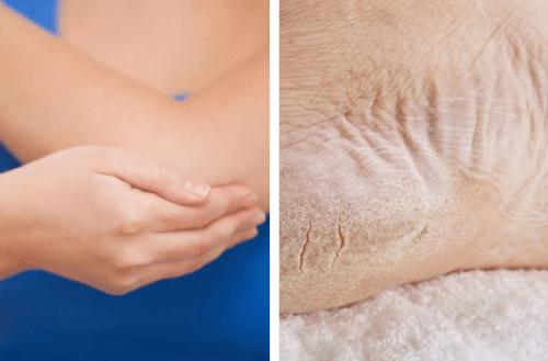 heal dry elbows