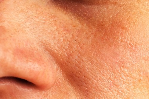 Natural Remedies for Enlarged Pores
