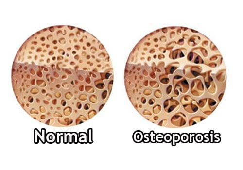 Bones with osteoporosis.