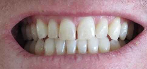 Person smiling dry skin and smile teeth grinding wears down teeth