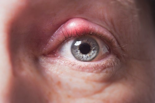 Combat Styes with These Natural Remedies