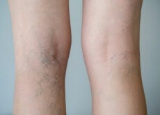 Treat Varicose Veins with Medicinal Infusions