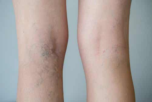How to Make a Garlic and Lemon Ointment for Varicose Veins