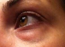 Natural Ways to Treat Under Eye Circles