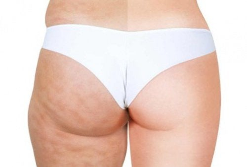 2 cellulite before and after