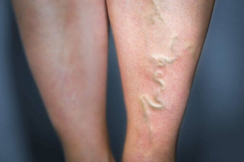A person with spider veins.
