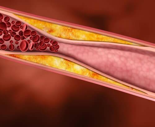 Blood cholesterol.