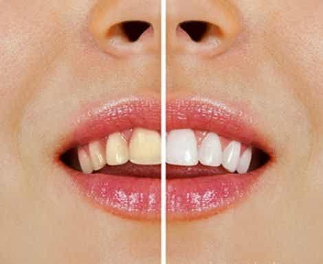 These Foods Cause Yellow Teeth