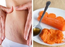 Carrot Treatment for Stretch Marks
