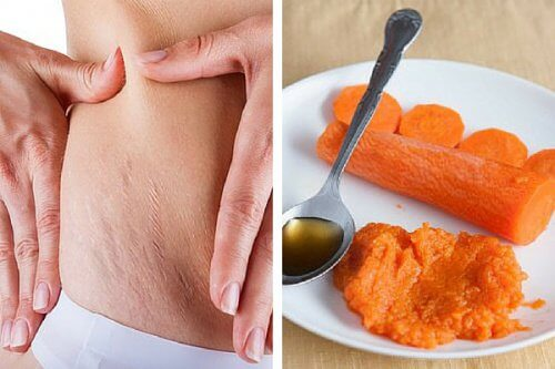 Carrot Treatment That May Help Reduce Stretch Marks