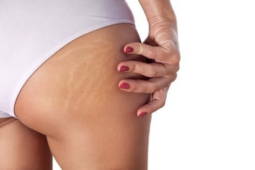 6 Natural Remedies to Reduce Stretch Marks