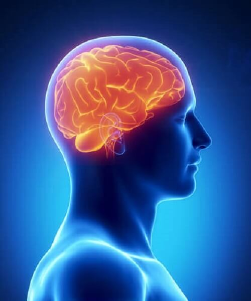 Brain with dementia caused by sleep deprivation