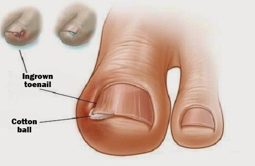 Using a cotton ball to heal an ingrown toenail